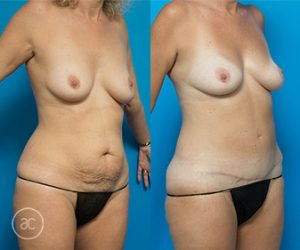 Tummy tuck before and after, photo 01
