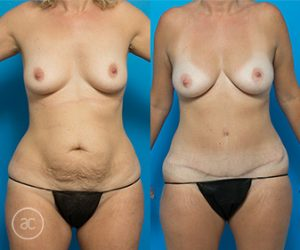 Abdominoplasty before and after, photo 02 front