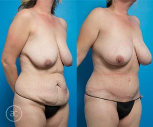 Tummy tuck before and after photo 03, angle view