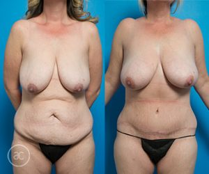 Tummy tuck patient, before and after gallery, photo04