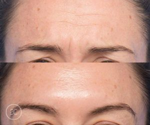anti wrinkle before and after - image 001 - wrinkle relaxers toowoomba