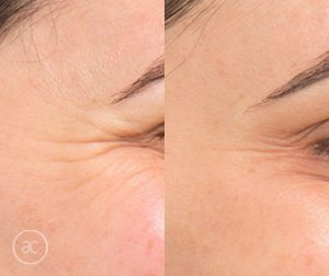 anti wrinkle before and after - image 002 - wrinkle relaxers toowoomba
