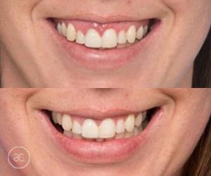 anti wrinkle before and after - image 003 - wrinkle relaxers toowoomba