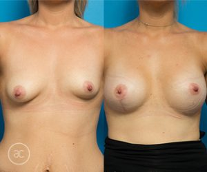 Breast asymmetry surgery patient, photo 01