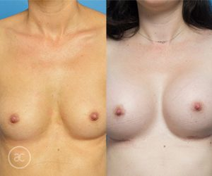 Breast asymmetry surgery, before and after gallery, photo 05