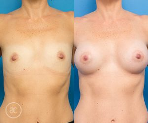 breast augmentation before and after - image 001