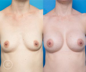 breast augmentation before and after - image 002