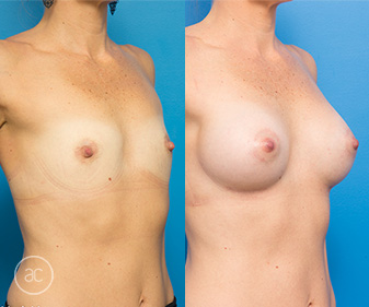 Breast augmentation surgery before & after 01, Allure Clinic