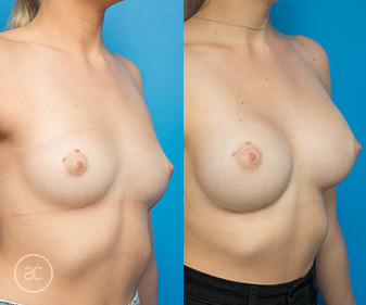 Allure Clinic patient before and after boob job, gallery photo 02