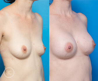 Breast augmentation surgery, before & after 03, Allure Clinic