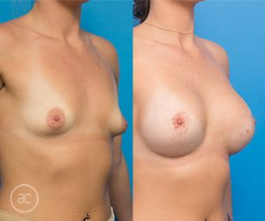 Breast lift patient photo 01