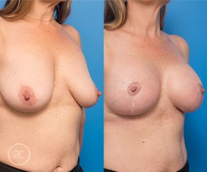 Breast lift, before and after gallery 02