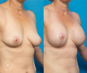 Breast lift before and after 03