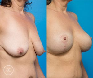 Breast lift gallery photo 04, angle view