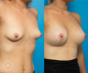 Breast lift gallery, photo 05