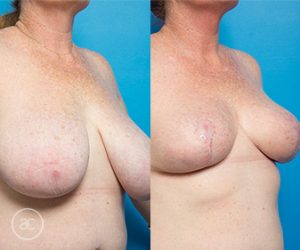 breast reduction surgery before and after - image 001