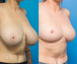 Breast reduction surgery 02, angle view