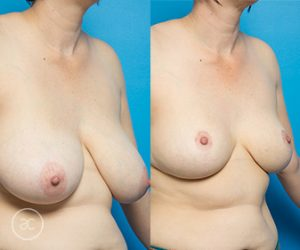 Breast reduction, before and after 03, angle view