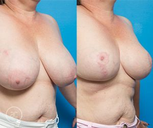 A patient before and after breast reduction 04, angle view