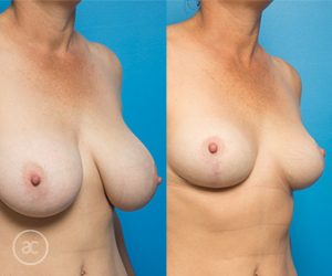 Breast reduction surgery, before and after, photo 05