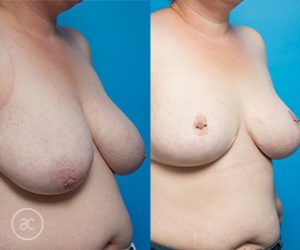 Breast reduction gallery, before and after photo 06