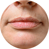 lip fillers image - allure cosmetic clinic