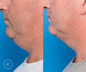 fat dissolving injections and coolsculpting - before and after - image 001