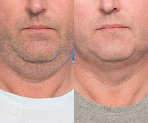 coolsculpting and fat dissolving treatment before and after - image 002