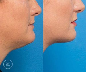 double chin removal before and after - image 001