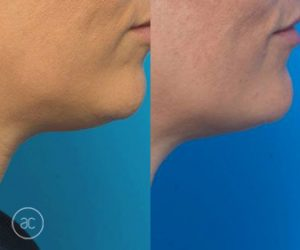 double chin removal before and after - image 002