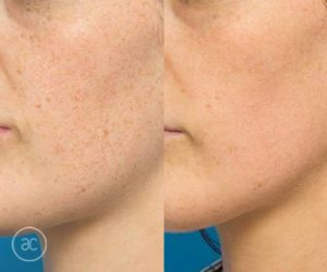 limelight pigmentation before and after - image 001