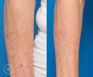 limelight pigmentation before and after - image 002