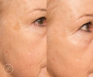 limelight pigmentation before and after - image 003 - 2x size