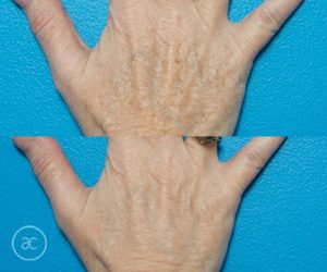 limelight pigmentation before and after - image 004
