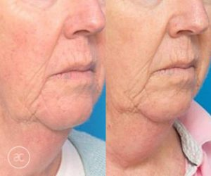 limelight pigmentation before and after - image 005