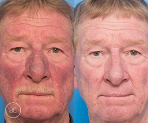 limelight pigmentation and Nd-YAG vascular - before and after - image 001