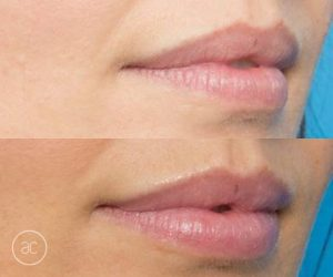 lip fillers before and after - image 002 - size 2x