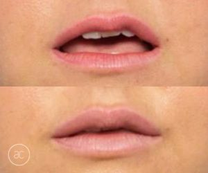 lip fillers before and after - image 003 - size 2x