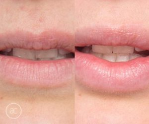 lip fillers before and after - image 004