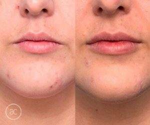 lip fillers before and after - image 005
