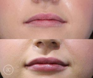 lip fillers before and after - image 006